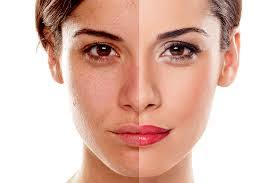 Collagena Lumiskin - pro omlazení - kapky- složení - krém