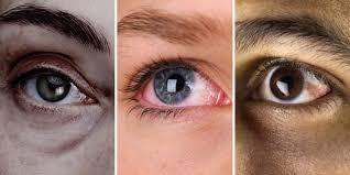 LumiViss Pro - lepší zrak - kde koupit - Amazon - prodejna