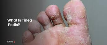 Myceril - na mykózu – recenze – forum – účinky