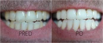 Dental Whitestrips - bělení zubů - výrobce - jak používat - akční