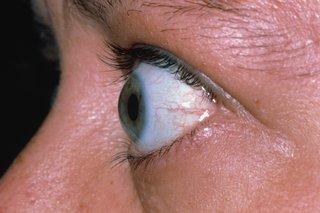 Oculax – lepší zrak - Amazon – kapky – jak používat