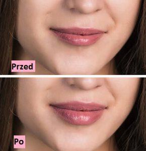 Premium Collagen5000 - zda webu výrobce - kde koupit - heureka - v lékárně - dr max