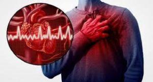 Cardione - funkar det - recension - i flashback - forum