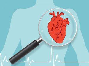 Cardione - var kan köpa - i Sverige - apoteket - pris - tillverkarens webbplats?